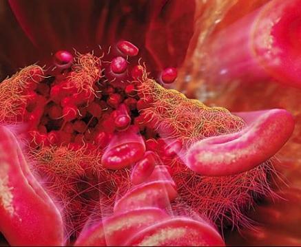 Тромбоцитоз – одно из показаний терапии
