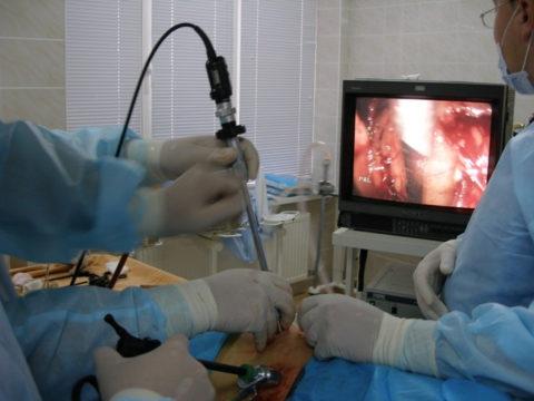Все действия при лапароскопии в видеорежиме выводятся на экран монитора
