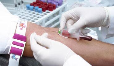 Взятие крови для биохимического анализа