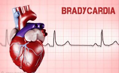 Снижение частоты сердечных сокращений.