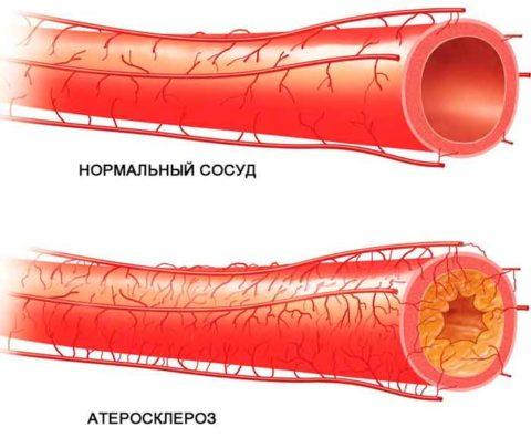 Алкоголь способствует образованию кровяных бляшек