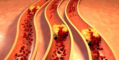 Большинство ученых связывают процесс образования кальцинатов в артериях и атеросклероз