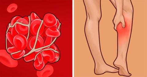 Этанол может вызвать образования тромбов в нижних конечностях