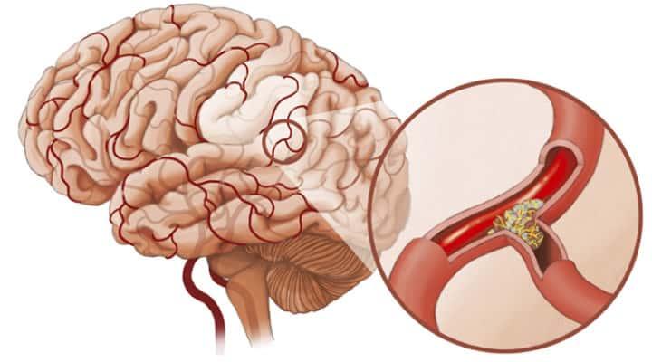 Симптомы спазма сосудов головного мозга и методы его лечения