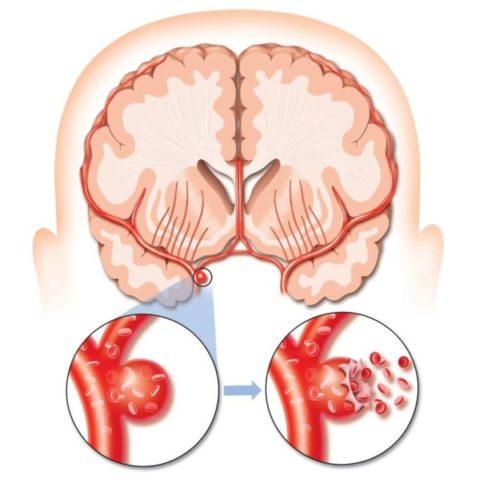 Фото: Аневризмы в головном мозгу