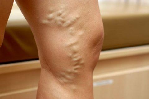 Фото: Пораженные сосуды хорошо видны даже под кожей