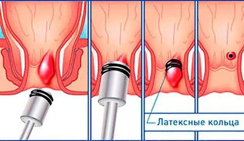 Лигирование варикозных узлов в заднем проходе