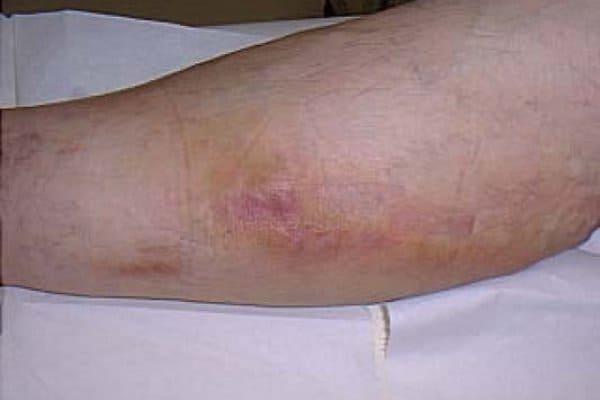 острый тромбофлебит поверхностных вен клиника и лечение