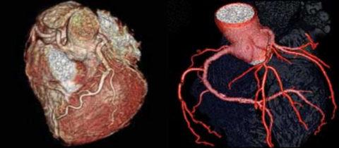 Нарушение кровообращения в венечных артериях быстро приводит к ишемии сердца