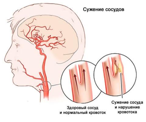 Нарушение кровотока при сужении артерий