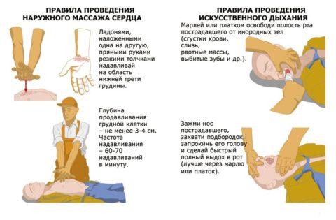Непрямой массаж сердца и искусственная вентиляция легких