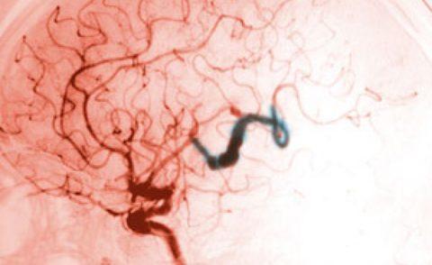 Обследование аневризмы с помощью контрастного вещества