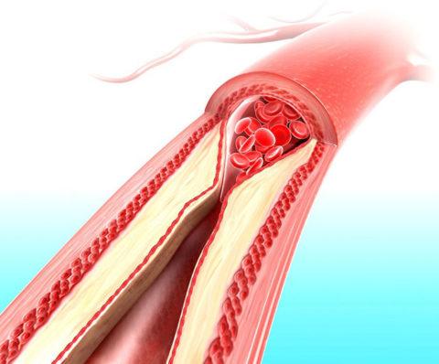 Почти закупоренный просвет артерии