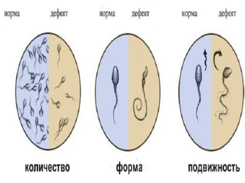 Показатели учитываемые при анализе спермы