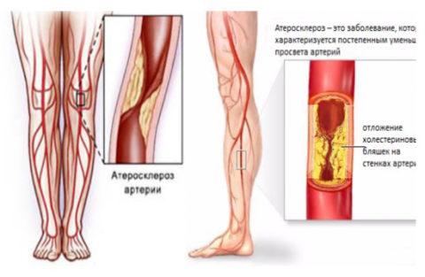 При атеросклерозе кровообращение часто нарушается на уровне a. femoralis