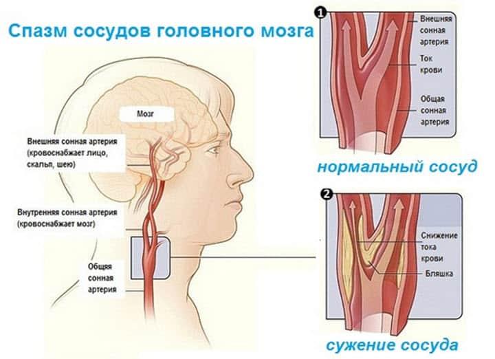 Гимнастика для сосудов головного мозга и шеи
