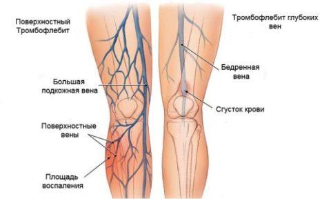 Пример развития острого тромбофлебита