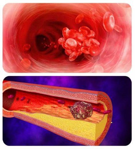 Примеры образования тромба