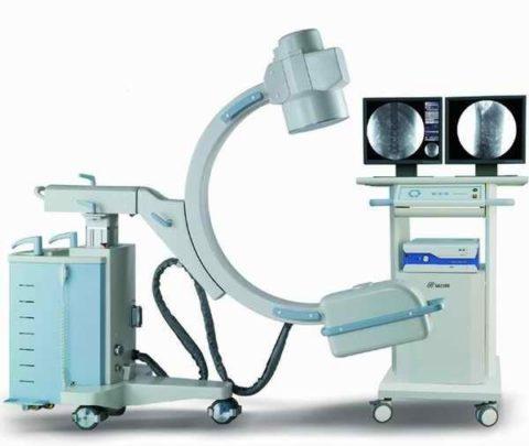 Процедура сопровождается рентген-визуализацией в режиме реального времени.