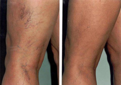Результат лечения до и после