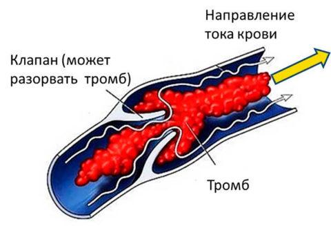 Схематическое изображение закупорки вен