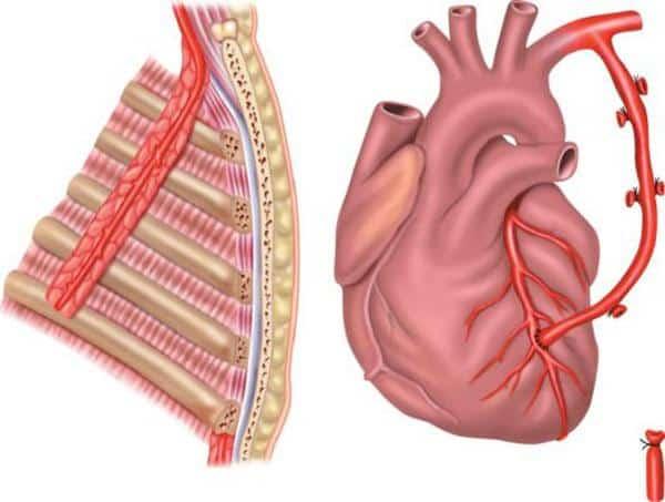 Коронарное шунтирование сосудов сердца: операция и реабилитация