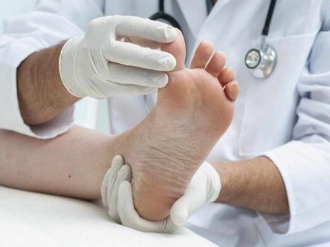Специалист проверяет степень нарушения кровоснабжения на стопе