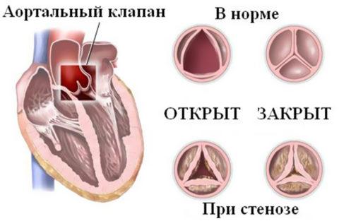 Стеноз клапана аорты – распространенный порок при кальцинозе