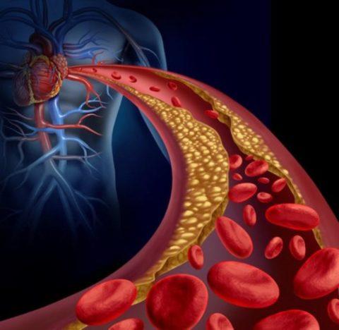Стеноз сердечных сосудов