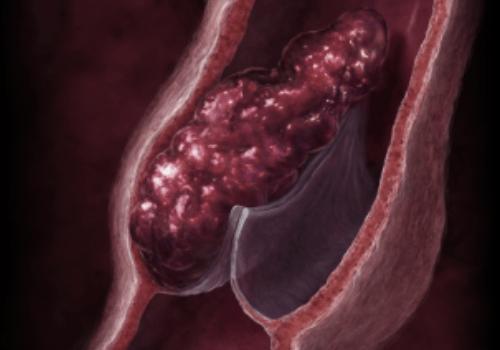 Венозный тромб