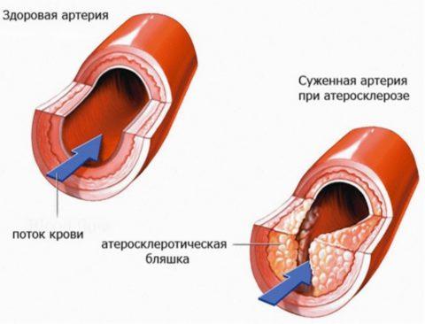 Цель лечения – устранить холестериновые бляшки