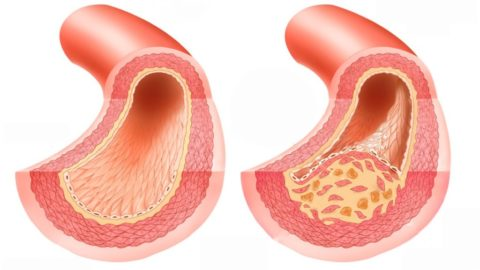 Здоровый и пораженный атеросклерозом (на фото – справа) сосуды