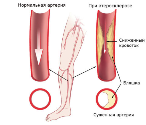 Развитие атеросклероза в артериях нижних конечностей