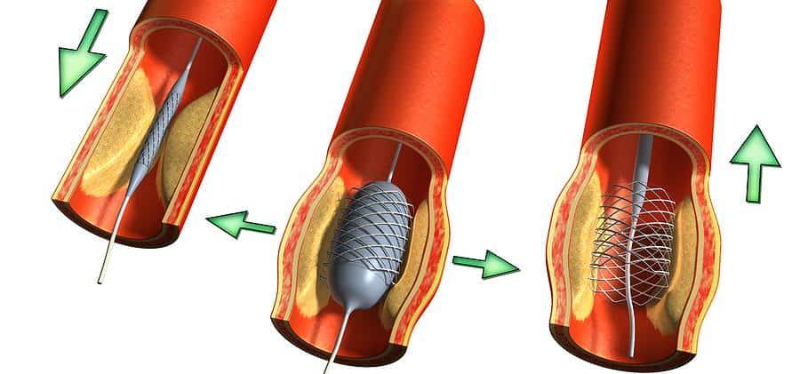 Стентирование артерии