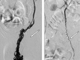 Схематическое расположение надчревной и яичковой вены