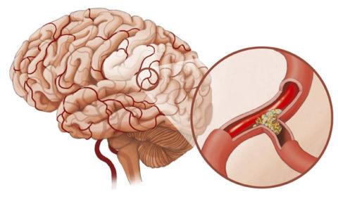 Бляшки в сосудах мозга (на фото) особенно опасны