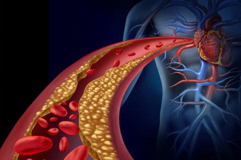 Больше всего страдают от атеросклероза мозг, сердце и периферические ткани