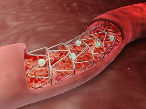 Часто стентирование спасает пациенту жизнь