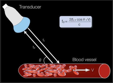 Эффект Допплера позволяет оценить, как кровь движется по сосудам.