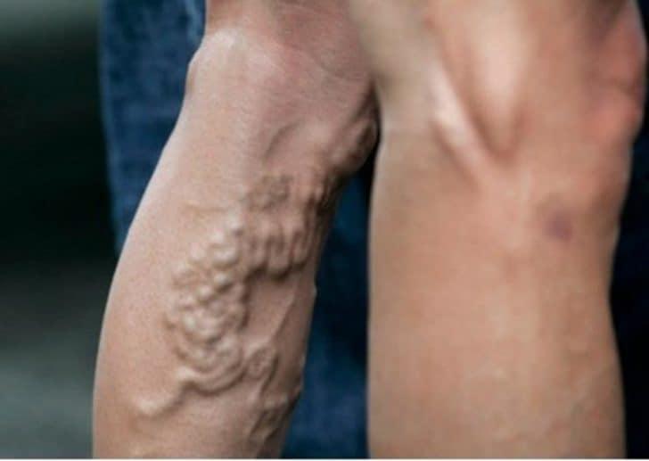 Чулок от варикоза для мужчин: свойства и особенности