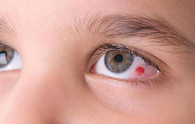 Кровоизлияние глаза у ребенка фото