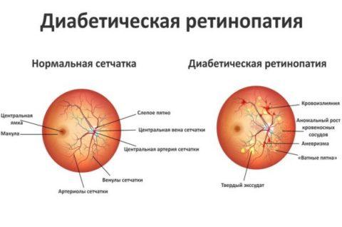 Изменения при ангиоретинопатии