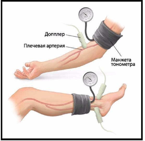 Измерения для подсчета лодыжечно-плечевого индекса