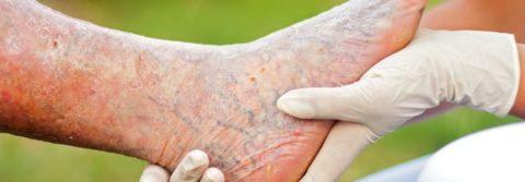 Какие осложнения могут проявляться у пациента, страдающего тромбофлебитом?