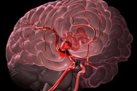 Кровоизлияние в структуры головного мозга.
