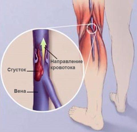 Механизм проявления тромбофлебита.