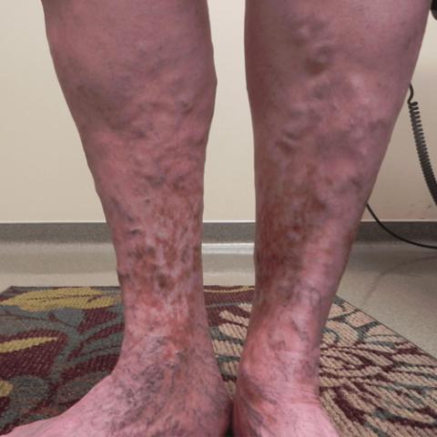 На фото внешний вид голеней у пациента с варикозным изменением поверхностных вен.