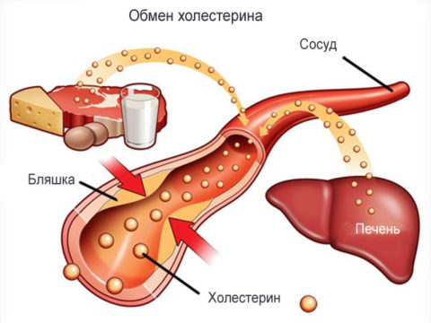 Негативные факторы вызывают нарушения обмена холестерина