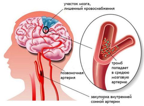 Патологии кровоснабжения необходимо лечить правильно