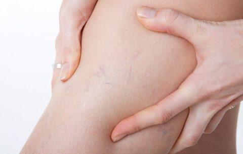 Первые признаки варикоза – показания к ношению компрессионных колгот